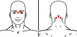 точки при головных болях